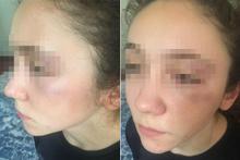 'Antrenör, 14 yaşındaki milli karateciyi yumrukla dövdü' iddiası