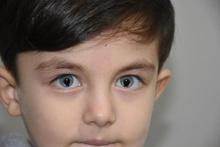 Milyonda bir görülen hastalığı var bu çocuk karanlıkta bile görüyor