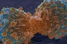 Bu ülkede 2 kişiden biri kanser olacak