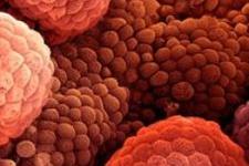 Beş tür prostat kanseri bulundu
