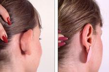 Kepçe kulak ameliyatı nedir nasıl yapılır?