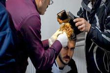 Kafası yarılan futbolcuya belediye başkanı dikiş attı