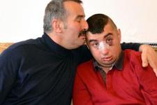 Zihinsel engelli genci ailece dövdüler