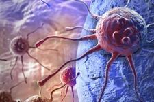 Kanserle ilgili doğru bilinen yanlışlar