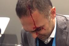 Fenerbahçe'de Hasan Çetinkaya kanlar içinde kaldı!
