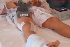 Çocuklarda bacak kısalıklarına kumandalı tedavi