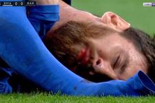 Messi yediği dirsekle yürekleri ağza getirdi