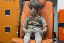 Bombalı saldırıda yaralanmıştı Ümran bebeğin son haline bakın