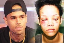 Bu hale o getirmişti Chris Brown Rihanna'yı dövdüğünü böyle anlattı