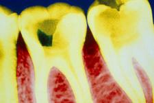 Aspirin'in inanılmaz bir faydası çıktı çürüyen dişleri...
