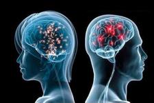 Agresif beyin kanseri tümörlerinin tedavisinde ümit veren keşif