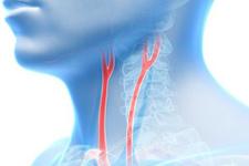 Şah damar tıkanıklığı nedir neden olur? Unutkanlık en sık belirtisi...