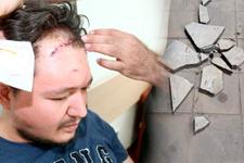 Şanlıurfa'da doktora mermerle saldırı için 15 yıl hapis istemi