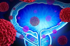 Bor bileşikleri 'prostat tedavisi'nde kullanılabilir mi?
