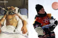 Ölümden dönen sporcu olimpiyat madalyası kazandı