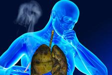 Sigara her yıl 7 milyon kişinin ölümüne neden oluyor