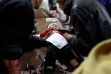 Yine katliam yaptılar: 71 ölü, 325 yaralı!