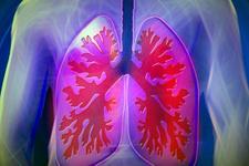 Sekonder akciğer kanserleri nedir nasıl tedavi edilir?