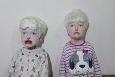 Albino kardeşler yardım bekliyor!