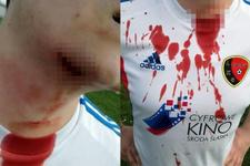 Taraftar sahaya girip futbolcunun boğazını kesti!