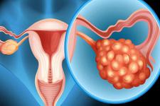 Yumurtalık kanseri belirtilerine dikkat! Yumurtalık kanseri neden olur?