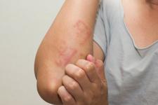 Egzama nedir belirtileri nelerdir ? Alerjik reaksiyonu olanlar dikkat!