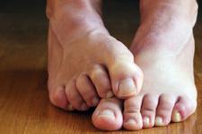 Ayak mantarı başı çekiyor işte ayaklarda sık görülen 4 cilt hastalığı!