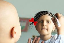 Lösemi nedir (kan kanseri) belirtileri ve tedavisi...