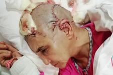 1 haftada 2 köpek saldırısı! Kadının kafa derisi 2 yerden koptu