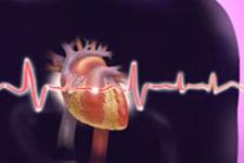 Kalp krizi hakkında korkutan gerçek