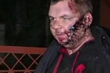 Ukraynalı muhalif Bulatov'a işkence yapılmış