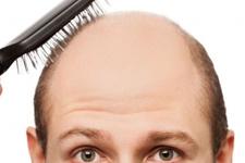 Saç ektirirken bunları mutlaka sorun!