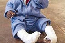Bebeğin bacaklarını kırdılar