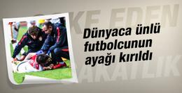 Dünyaca ünlü futbolcunun ayağı kırıldı