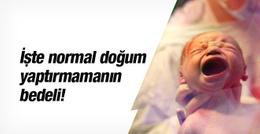 Normal doğum yaptırmayan uzman doktor olamayacak!