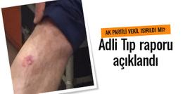 AK Partili vekil ısırıldı mı? Adli Tıp raporu açıklandı