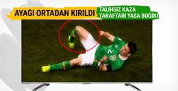 İrlandalı yıldız oyuncunun ayağı ortadan ikiye kırıldı