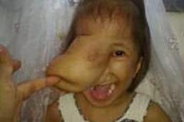 Yüzünde et parçasıyla doğdu! Son haline bakın