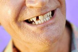 Diş eksikliği duygusal travmaya neden oluyor