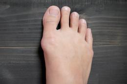Ayak şişmesinin sebebi nedir? Bu 9 sebebe dikkat