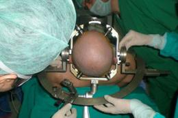 Beyin ameliyatlarının süresi kısalacak!