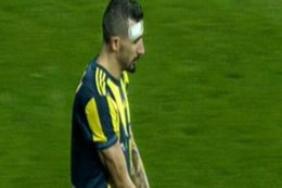 Mehmet Topal'ın alnına yabancı madde isabet etti