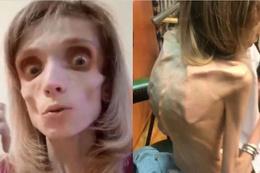 """Bu kadın sadece 17 kilo! Doktoru """"Korku filminde ceset rolü oynarsın"""" dedi"""
