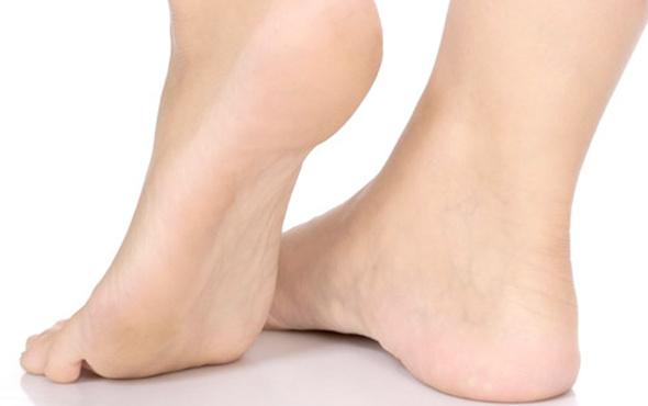 topuk ağrısı neyin belirtisi ankilozan spondilitin nedir