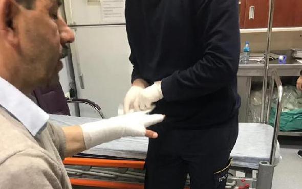 Belediye meclisinde arbede! MHP'li üyenin parmağı kırıldı