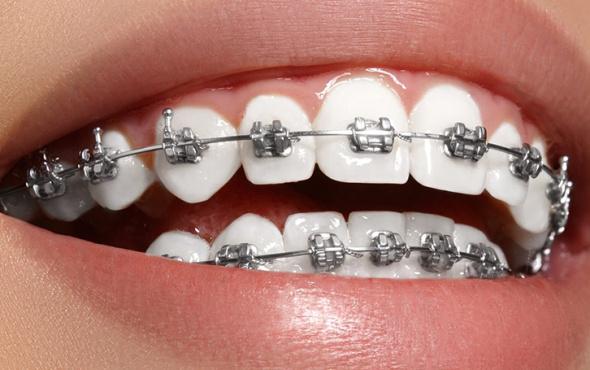 Diş teli kullananlar için ağız bakım önerileri...