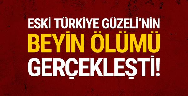 Eski Türkiye Güzeli'nin beyin ölümü gerçekleşti!
