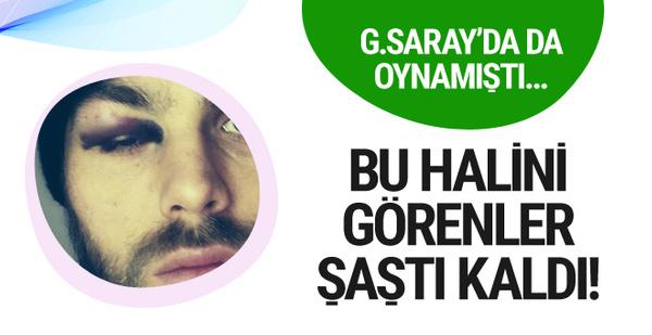 Eski Galatasaraylı'nın bu halini görenler şoke oldu