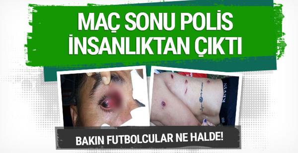 Maçta polis futbolcuları vurdu