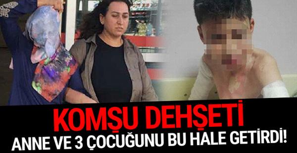 Konya'da komşu dehşeti: Çocuklara kezzap döktü!